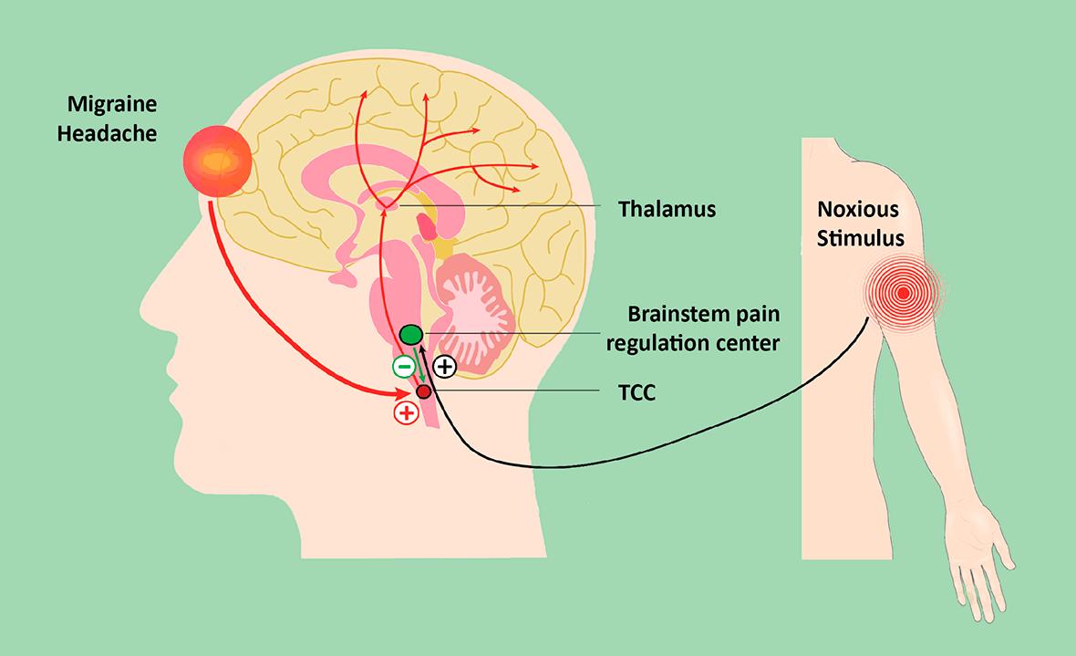 Nerivio Method of operation illustration